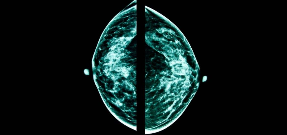 AI holds promise as a tool for breast cancer screening