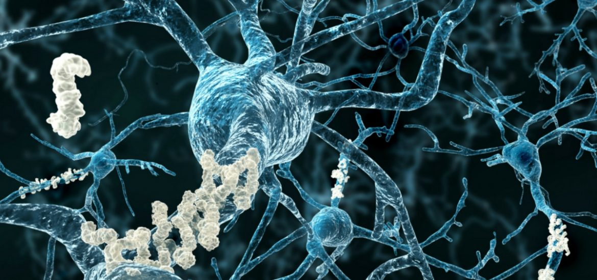 New hope for Alzheimer's treatment: Biogen and  Eisai report promising results from Phase II Clinical Study of BAN2401