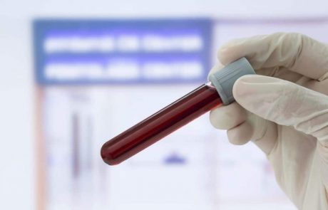 A simple blood test can detect cancer years before symptoms